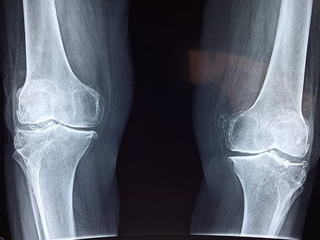 Osteoarthritis Article