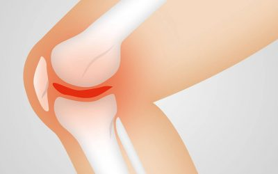 10 Potential Causes Of Numbness In The Arms And Legs- Part One